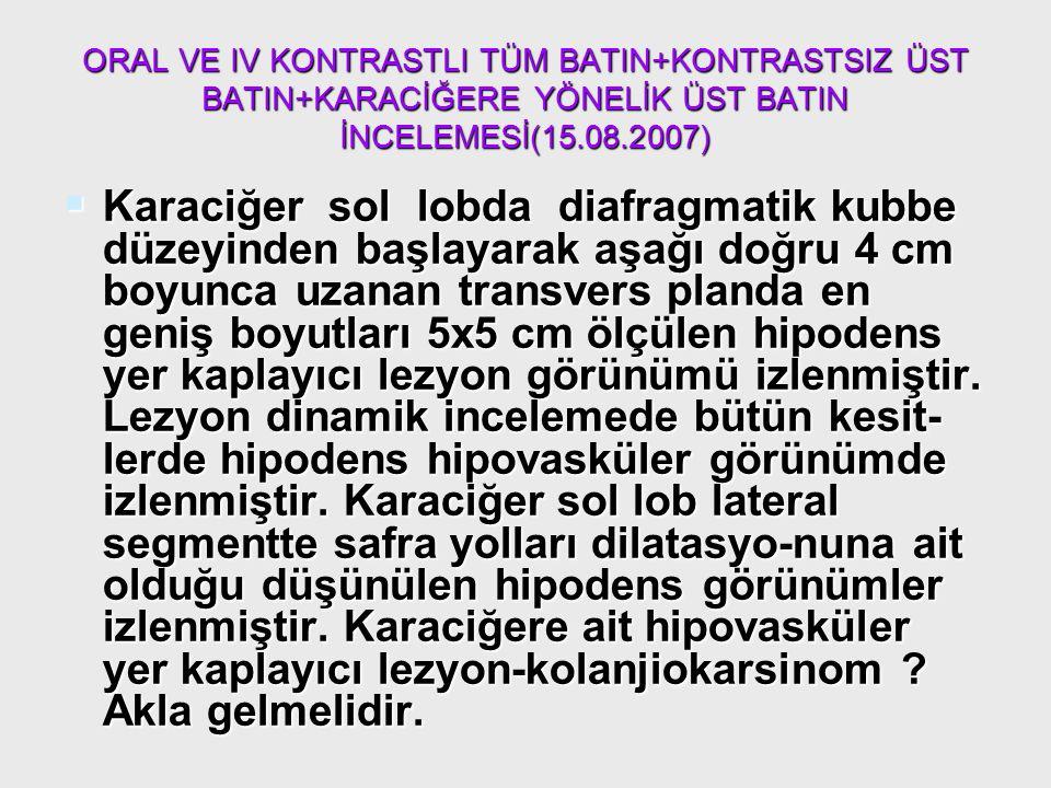 ORAL VE IV KONTRASTLI TÜM BATIN+KONTRASTSIZ ÜST BATIN+KARACİĞERE YÖNELİK ÜST BATIN İNCELEMESİ(15.08.2007)  Karaciğer sol lobda diafragmatik kubbe düz