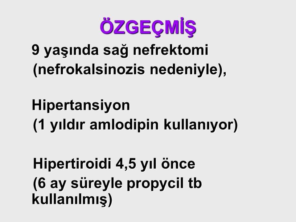 ÖZGEÇMİŞ 9 yaşında sağ nefrektomi (nefrokalsinozis nedeniyle), (nefrokalsinozis nedeniyle),Hipertansiyon (1 yıldır amlodipin kullanıyor) (1 yıldır aml