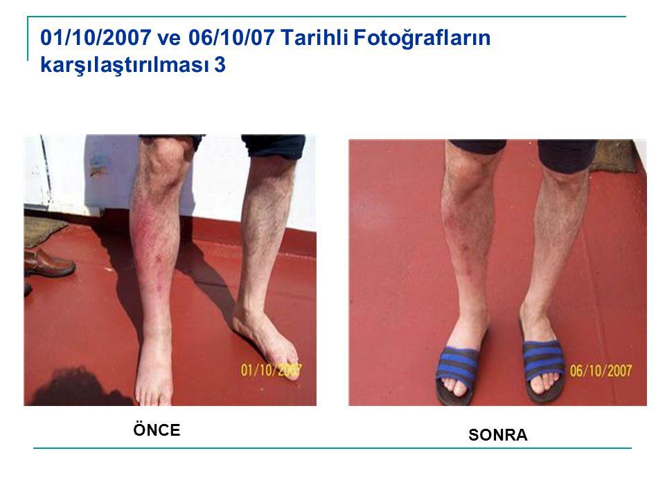 01/10/2007 ve 06/10/07 Tarihli Fotoğrafların karşılaştırılması 3 ÖNCE SONRA