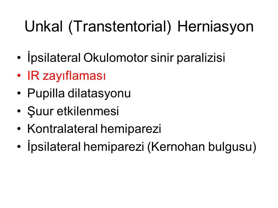 Unkal (Transtentorial) Herniasyon •İpsilateral Okulomotor sinir paralizisi •IR zayıflaması •Pupilla dilatasyonu •Şuur etkilenmesi •Kontralateral hemip