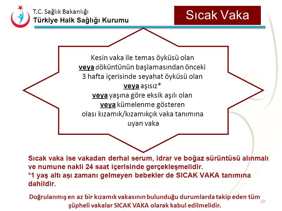 T.C. Sağlık Bakanlığı Türkiye Halk Sağlığı Kurumu Kızamık Vaka Sınıflaması Şüpheli Vaka: Makülopapüler döküntüyle seyreden herhangi bir hastalık. Olas