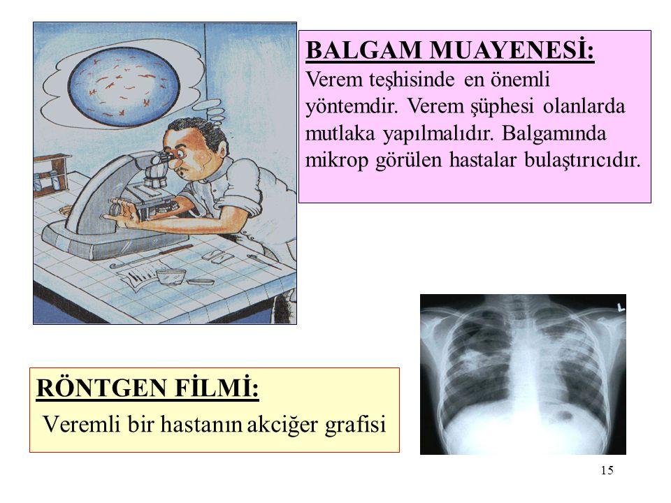 15 RÖNTGEN FİLMİ: Veremli bir hastanın akciğer grafisi BALGAM MUAYENESİ: Verem teşhisinde en önemli yöntemdir. Verem şüphesi olanlarda mutlaka yapılma