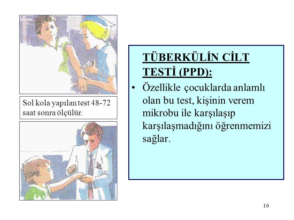 16 TÜBERKÜLİN CİLT TESTİ (PPD): •Özellikle çocuklarda anlamlı olan bu test, kişinin verem mikrobu ile karşılaşıp karşılaşmadığını öğrenmemizi sağlar.
