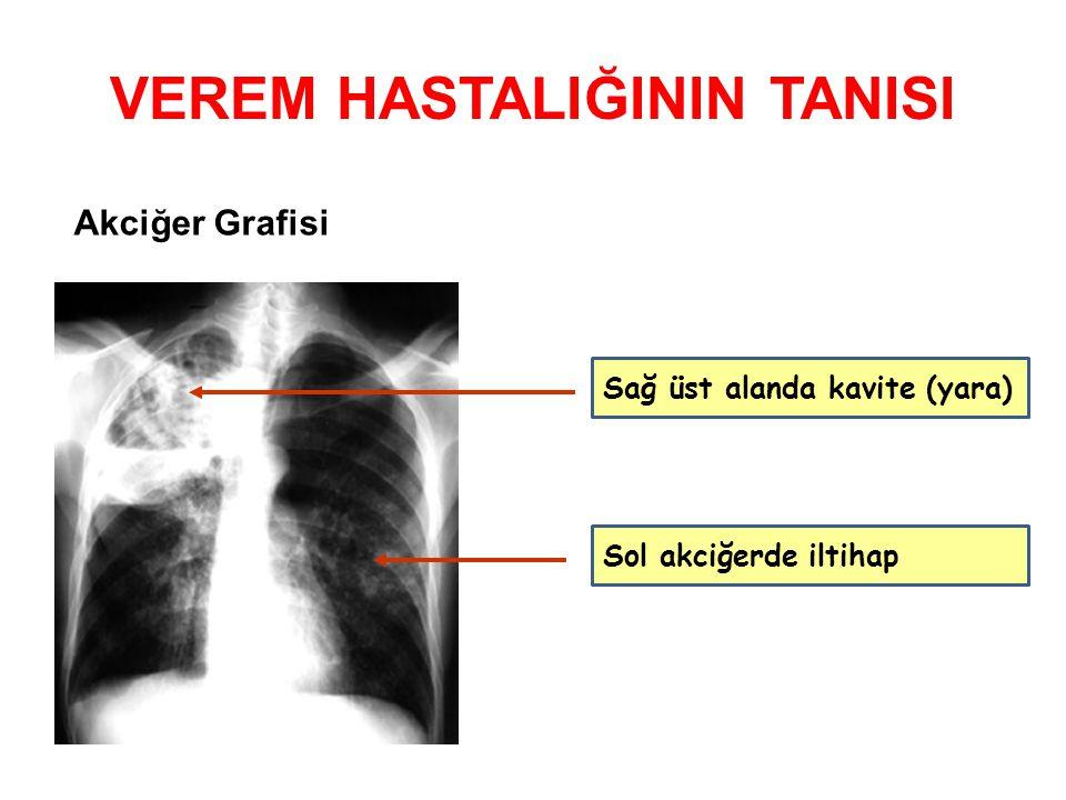 VEREM HASTALIĞININ TANISI Akciğer Grafisi Sağ üst alanda kavite (yara) Sol akciğerde iltihap