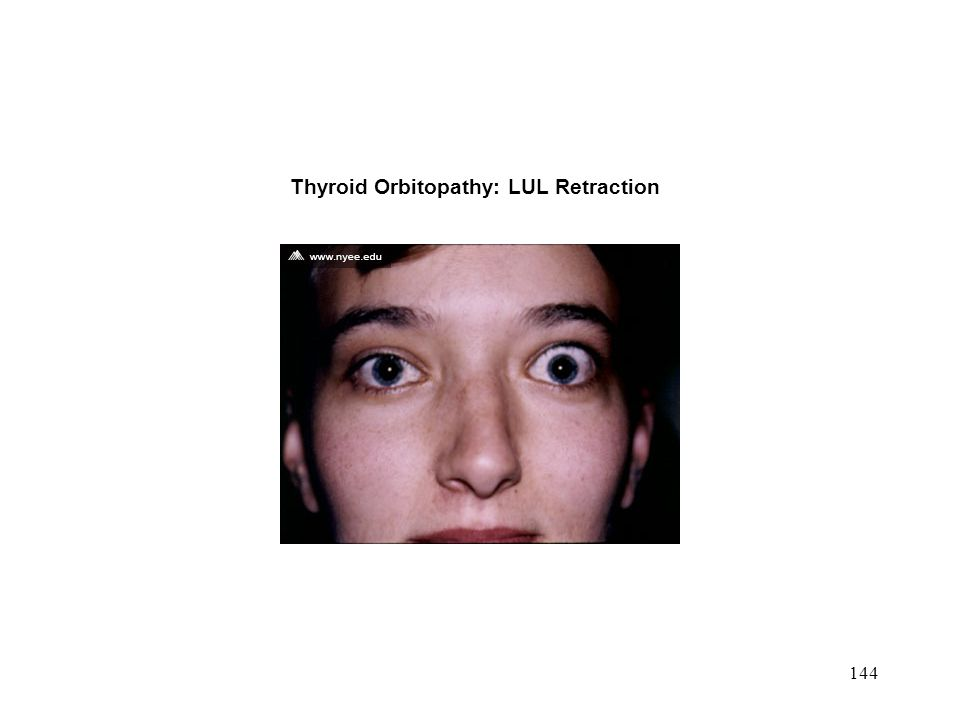 144 Thyroid Orbitopathy: LUL Retraction