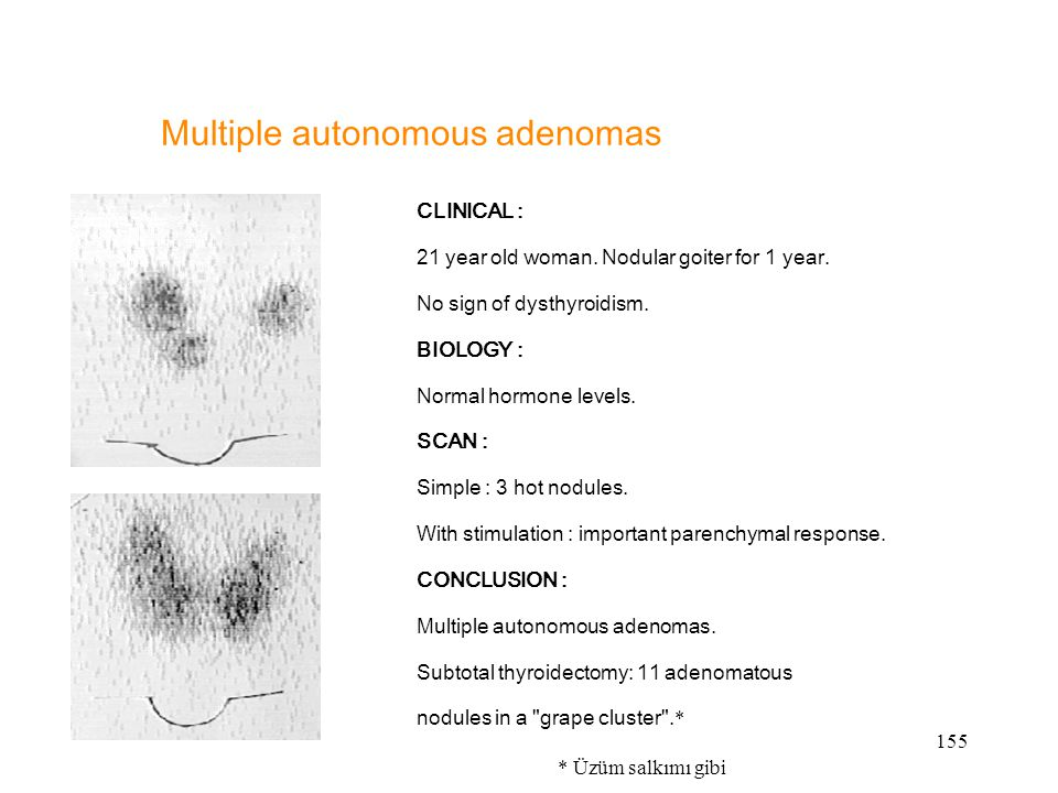 155 Multiple autonomous adenomas CLINICAL : 21 year old woman. Nodular goiter for 1 year. No sign of dysthyroidism. BIOLOGY : Normal hormone levels. S