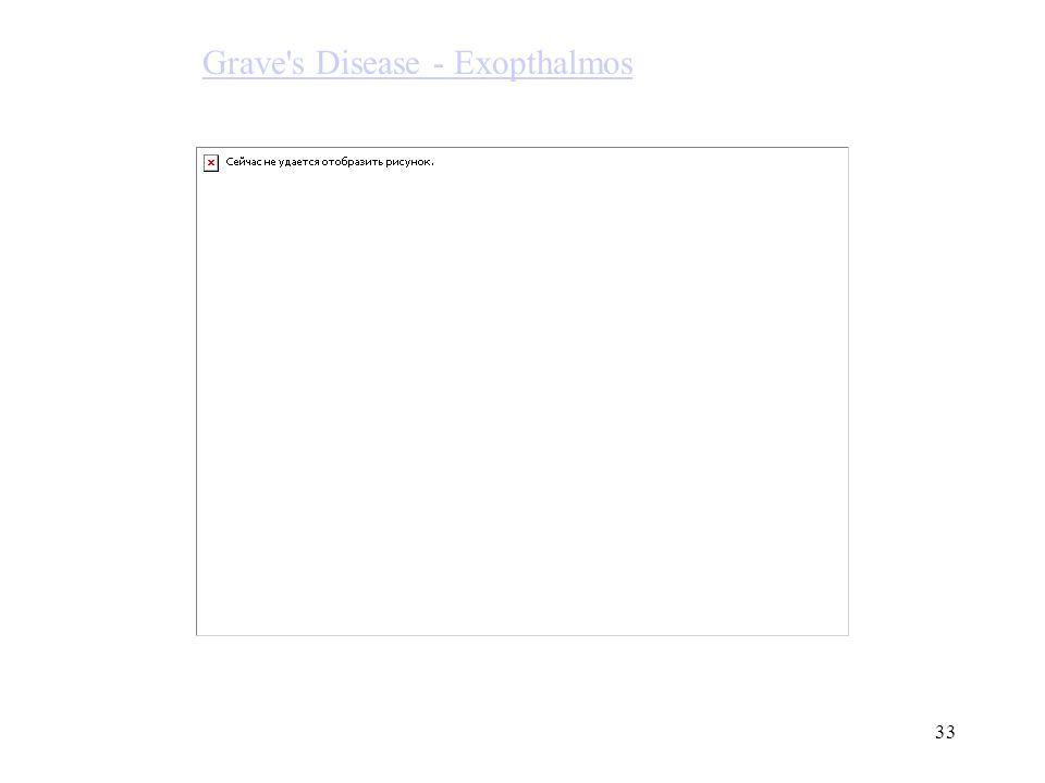 33 Grave's Disease - Exopthalmos