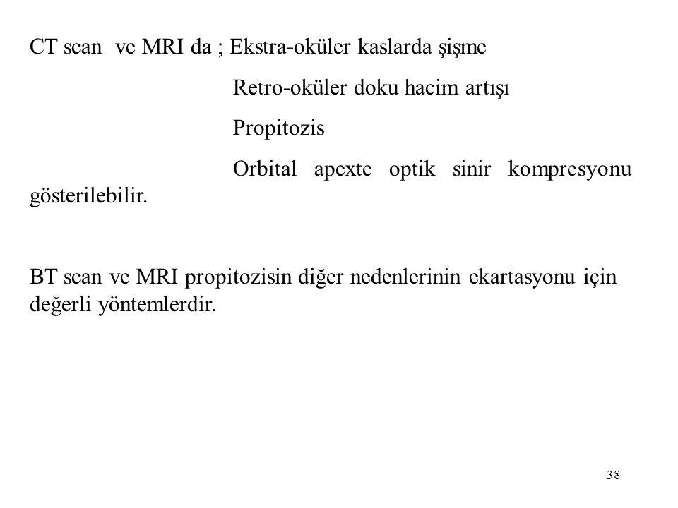 38 CT scan ve MRI da ; Ekstra-oküler kaslarda şişme Retro-oküler doku hacim artışı Propitozis Orbital apexte optik sinir kompresyonu gösterilebilir. B