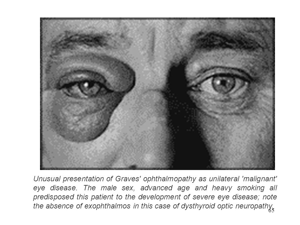 65 Unusual presentation of Graves' ophthalmopathy as unilateral 'malignant' eye disease. The male sex, advanced age and heavy smoking all predisposed