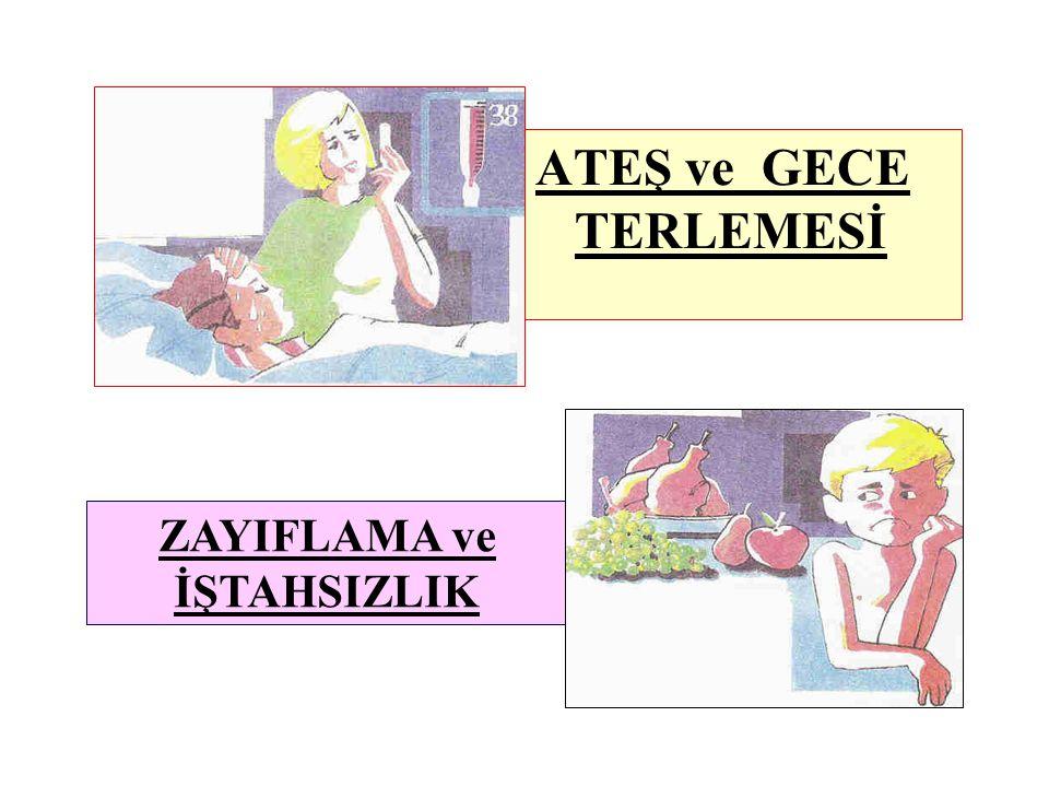 ATEŞ ve GECE TERLEMESİ ZAYIFLAMA ve İŞTAHSIZLIK