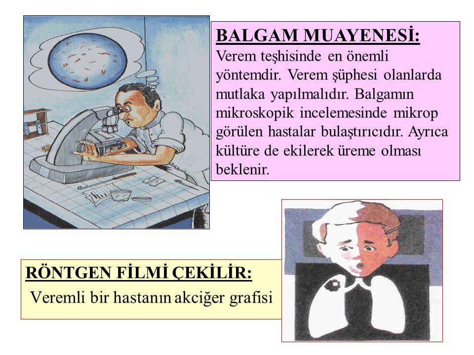 RÖNTGEN FİLMİ ÇEKİLİR: Veremli bir hastanın akciğer grafisi BALGAM MUAYENESİ: Verem teşhisinde en önemli yöntemdir. Verem şüphesi olanlarda mutlaka ya