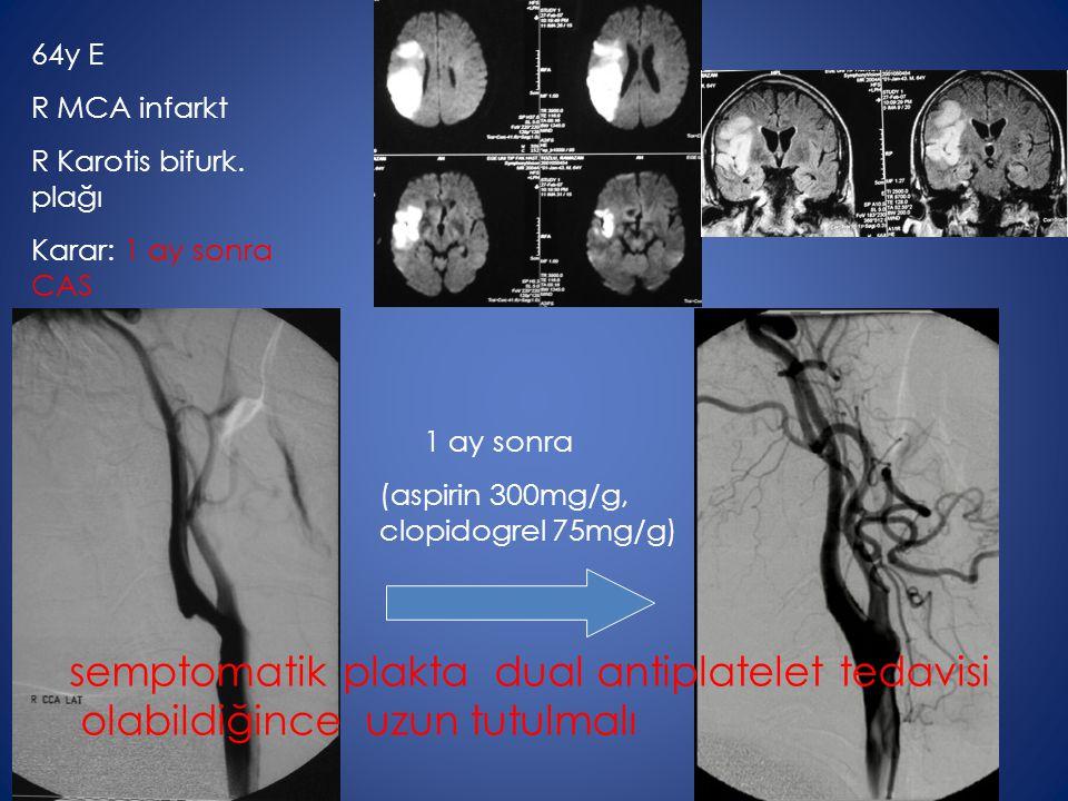 64y E R MCA infarkt R Karotis bifurk. plağı Karar: 1 ay sonra CAS 1 ay sonra (aspirin 300mg/g, clopidogrel 75mg/g) semptomatik plakta dual antiplatele