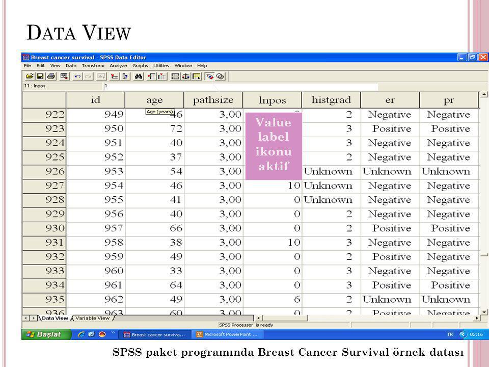 D ATA V IEW SPSS paket programında Breast Cancer Survival örnek datası Value label ikonu aktif