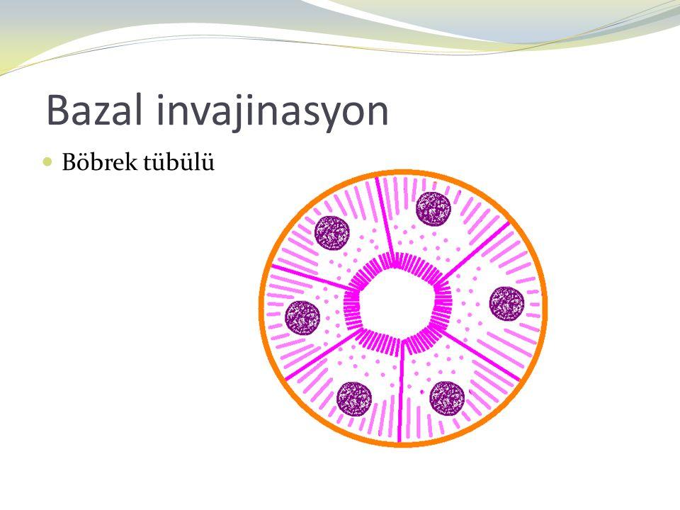 Bazal invajinasyon Böbrek tübülü