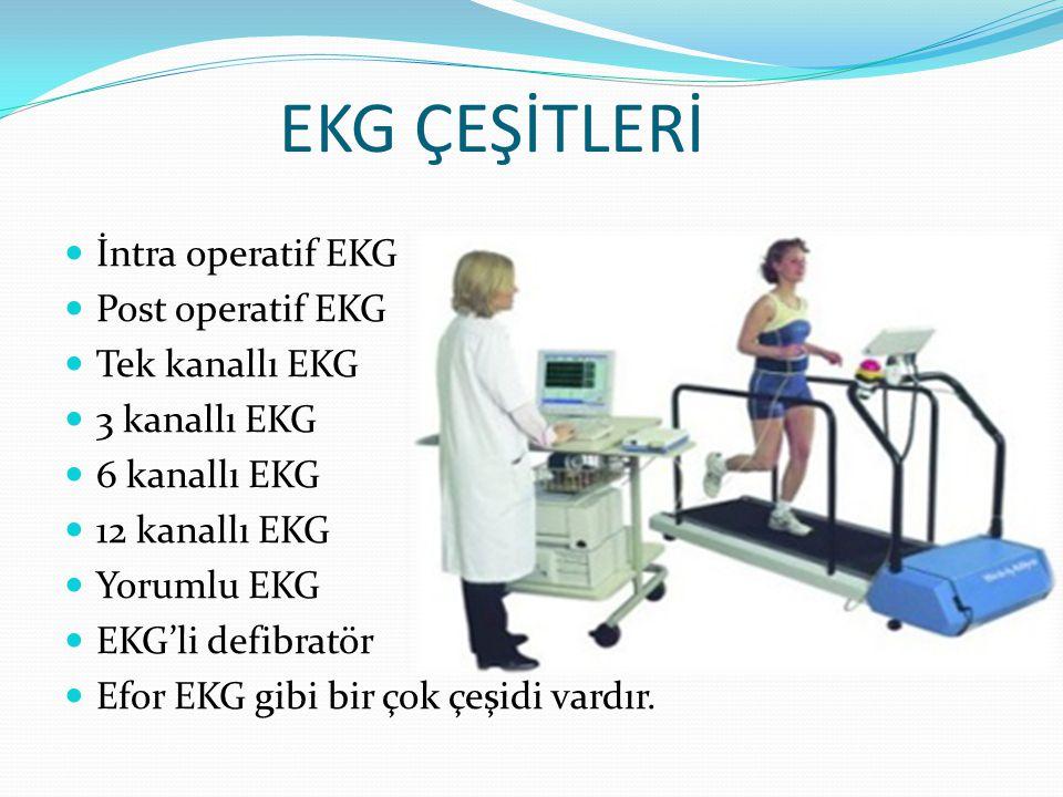 EKG ÇEŞİTLERİ İntra operatif EKG Post operatif EKG Tek kanallı EKG 3 kanallı EKG 6 kanallı EKG 12 kanallı EKG Yorumlu EKG EKG'li defibratör Efor EKG g