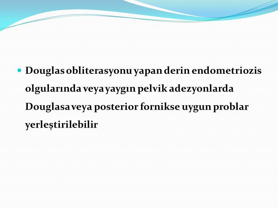 Douglas obliterasyonu yapan derin endometriozis olgularında veya yaygın pelvik adezyonlarda Douglasa veya posterior fornikse uygun problar yerleştiril