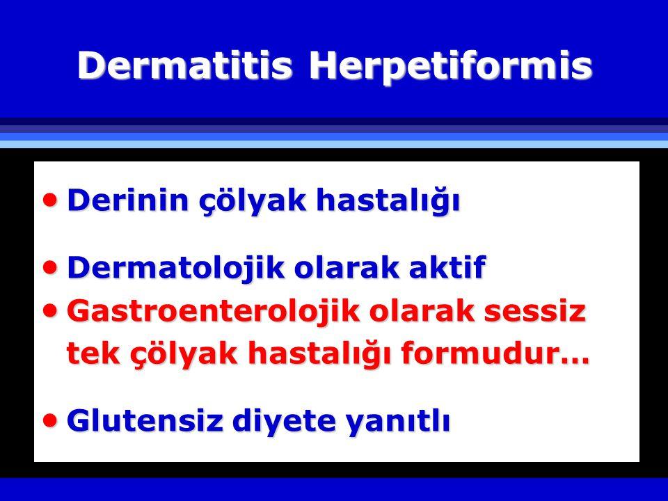 Dermatitis Herpetiformis  Derinin çölyak hastalığı  Dermatolojik olarak aktif  Gastroenterolojik olarak sessiz tek çölyak hastalığı formudur…  Glutensiz diyete yanıtlı