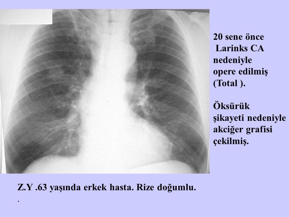 Z.Y.63 yaşında erkek hasta. Rize doğumlu.. 20 sene önce Larinks CA nedeniyle opere edilmiş (Total ). Öksürük şikayeti nedeniyle akciğer grafisi çekilm