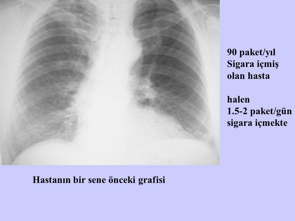 Hastanın bir sene önceki grafisi 90 paket/yıl Sigara içmiş olan hasta halen 1.5-2 paket/gün sigara içmekte