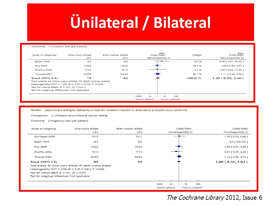 Ünilateral / Bilateral The Cochrane Library 2012, Issue 6