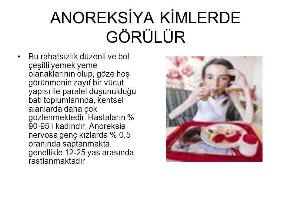 ANOREKSİYA KİMLERDE GÖRÜLÜR •Bu rahatsızlık düzenli ve bol çeşitli yemek yeme olanaklarının olup, göze hoş görünmenin zayıf bir vücut yapısı ile paral
