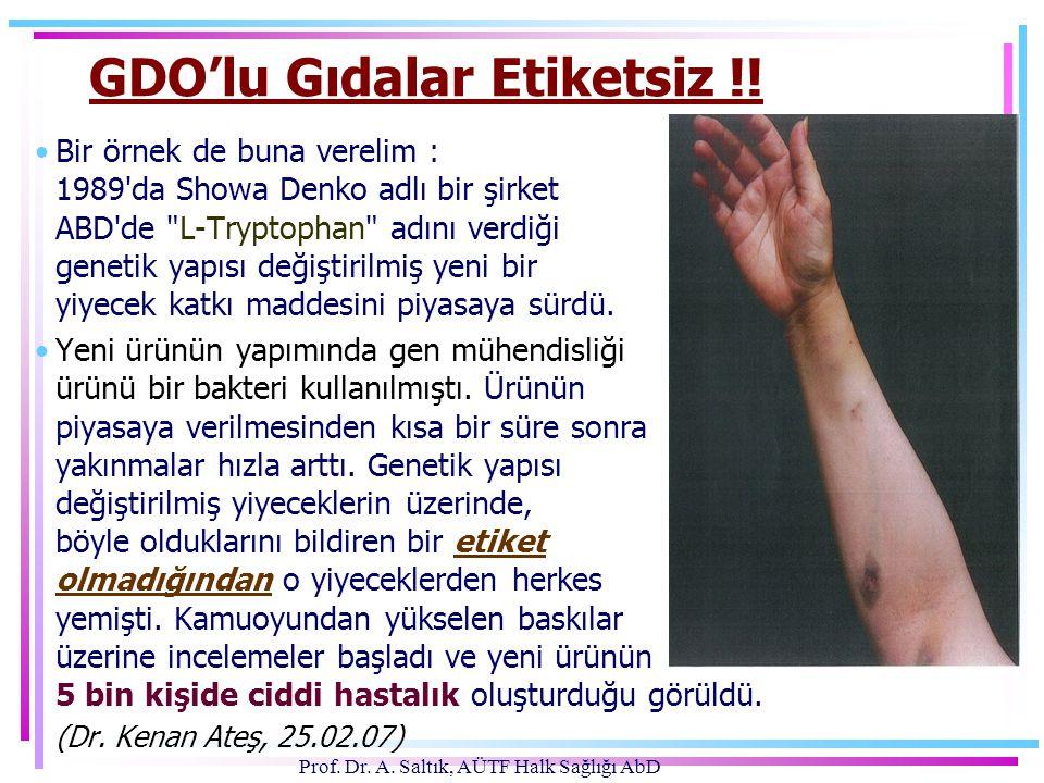 Prof. Dr. A. Saltık, AÜTF Halk Sağlığı AbD GDO'lu Gıdalar Etiketsiz !! •Bir örnek de buna verelim : 1989'da Showa Denko adlı bir şirket ABD'de