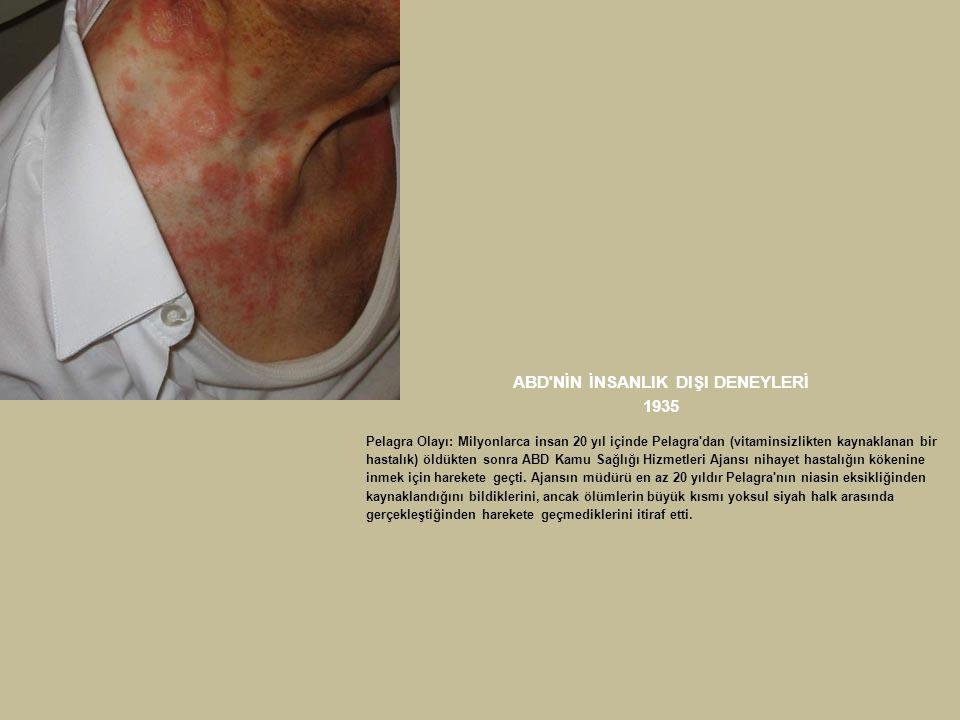 ABD'NİN İNSANLIK DIŞI DENEYLERİ 1935 Pelagra Olayı: Milyonlarca insan 20 yıl içinde Pelagra'dan (vitaminsizlikten kaynaklanan bir hastalık) öldükten s