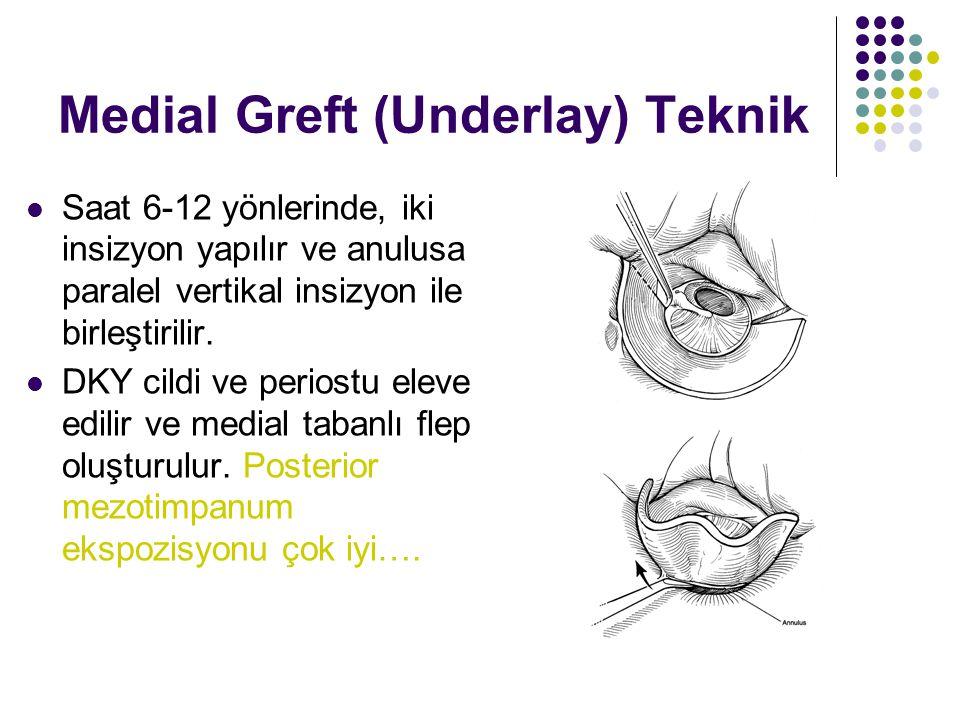 Medial Greft (Underlay) Teknik  Saat 6-12 yönlerinde, iki insizyon yapılır ve anulusa paralel vertikal insizyon ile birleştirilir.