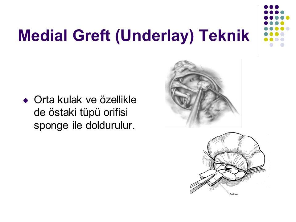 Medial Greft (Underlay) Teknik  Orta kulak ve özellikle de östaki tüpü orifisi sponge ile doldurulur.