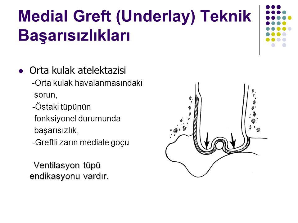 Medial Greft (Underlay) Teknik Başarısızlıkları  Orta kulak atelektazisi -Orta kulak havalanmasındaki sorun, -Östaki tüpünün fonksiyonel durumunda başarısızlık, -Greftli zarın mediale göçü Ventilasyon tüpü endikasyonu vardır.