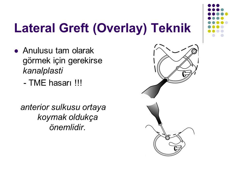 Lateral Greft (Overlay) Teknik  Anulusu tam olarak görmek için gerekirse kanalplasti - TME hasarı !!.