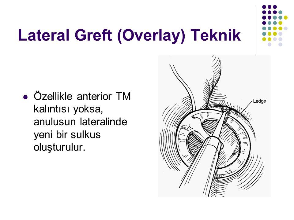 Lateral Greft (Overlay) Teknik  Özellikle anterior TM kalıntısı yoksa, anulusun lateralinde yeni bir sulkus oluşturulur.