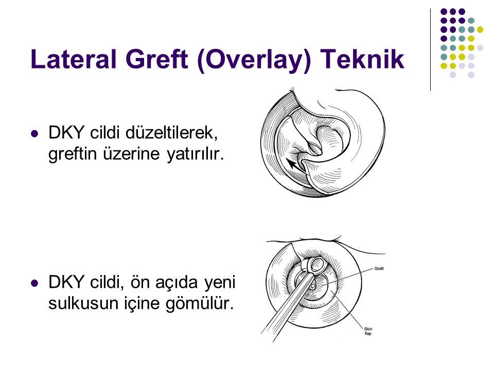 Lateral Greft (Overlay) Teknik  DKY cildi düzeltilerek, greftin üzerine yatırılır.