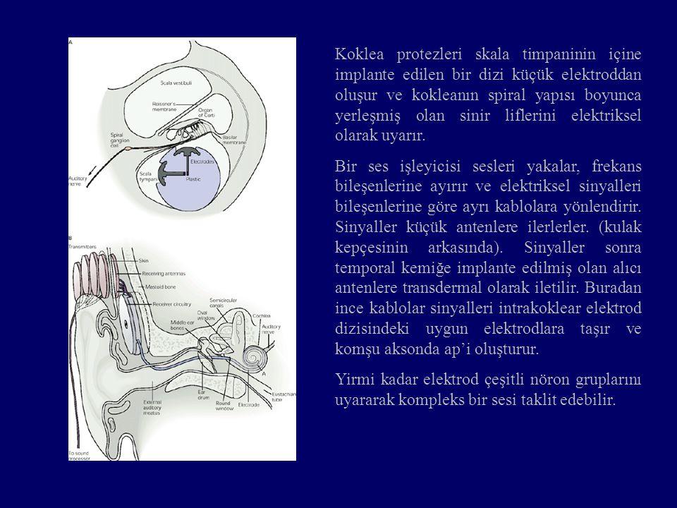 Koklea protezleri skala timpaninin içine implante edilen bir dizi küçük elektroddan oluşur ve kokleanın spiral yapısı boyunca yerleşmiş olan sinir liflerini elektriksel olarak uyarır.
