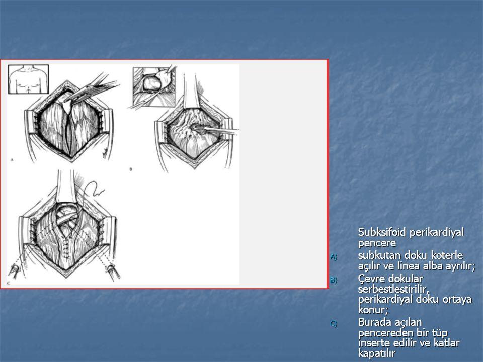 Subksifoid perikardiyal pencere A) subkutan doku koterle açılır ve linea alba ayrılır; B) Çevre dokular serbestlestirilir, perikardiyal doku ortaya konur; C) Burada açılan pencereden bir tüp inserte edilir ve katlar kapatılır
