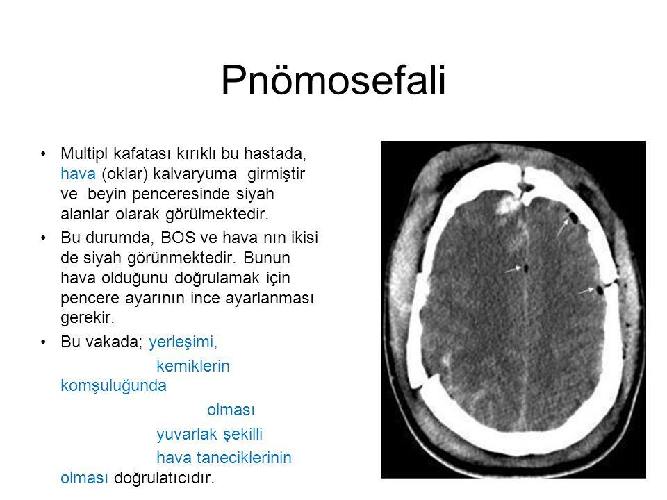 Pnömosefali •Multipl kafatası kırıklı bu hastada, hava (oklar) kalvaryuma girmiştir ve beyin penceresinde siyah alanlar olarak görülmektedir. •Bu duru