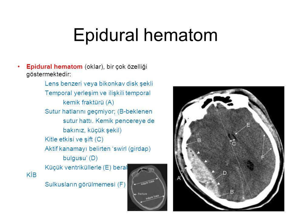 Epidural hematom •Epidural hematom (oklar), bir çok özelliği göstermektedir: Lens benzeri veya bikonkav disk şekli Temporal yerleşim ve ilişkili tempo