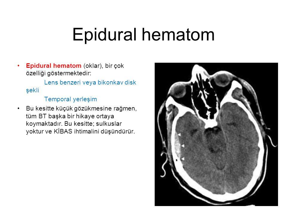 Epidural hematom •Epidural hematom (oklar), bir çok özelliği göstermektedir: Lens benzeri veya bikonkav disk şekli Temporal yerleşim •Bu kesitte küçük