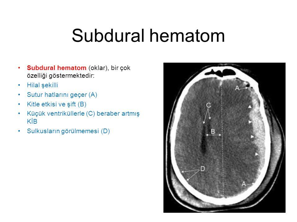 Subdural hematom •Subdural hematom (oklar), bir çok özelliği göstermektedir: •Hilal şekilli •Sutur hatlarını geçer (A) •Kitle etkisi ve şift (B) •Küçü
