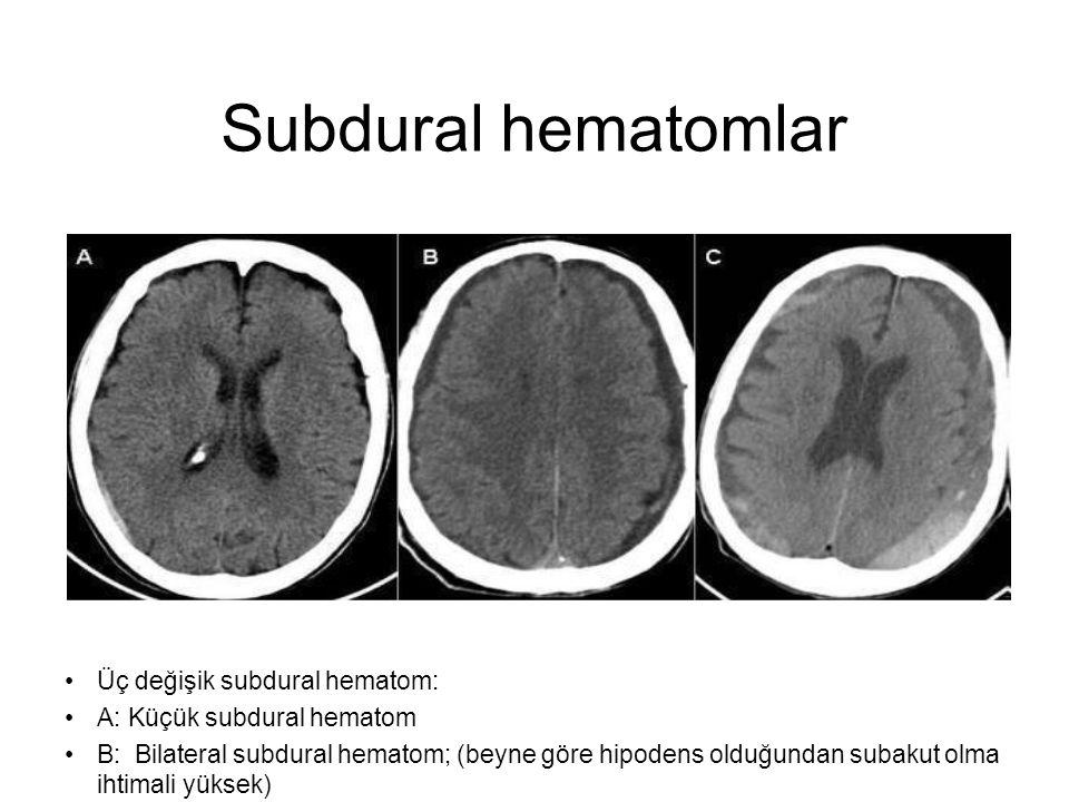 Subdural hematomlar •Üç değişik subdural hematom: •A: Küçük subdural hematom •B: Bilateral subdural hematom; (beyne göre hipodens olduğundan subakut o