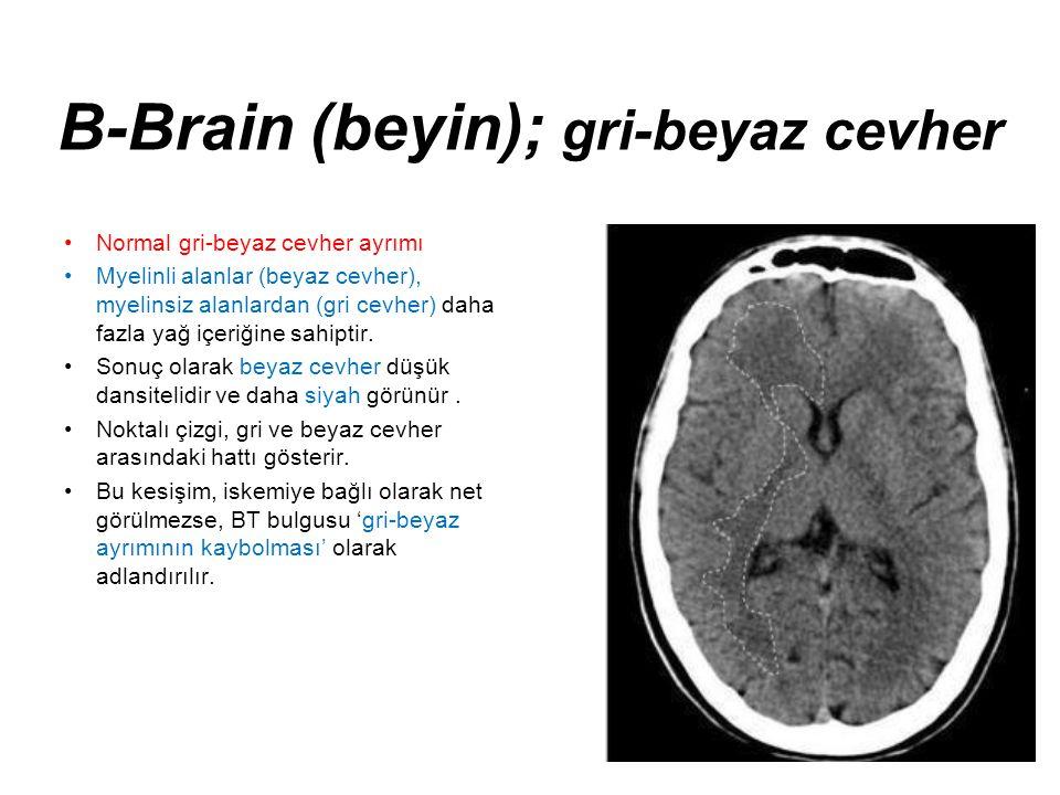 B-Brain (beyin); gri-beyaz cevher •Normal gri-beyaz cevher ayrımı •Myelinli alanlar (beyaz cevher), myelinsiz alanlardan (gri cevher) daha fazla yağ i