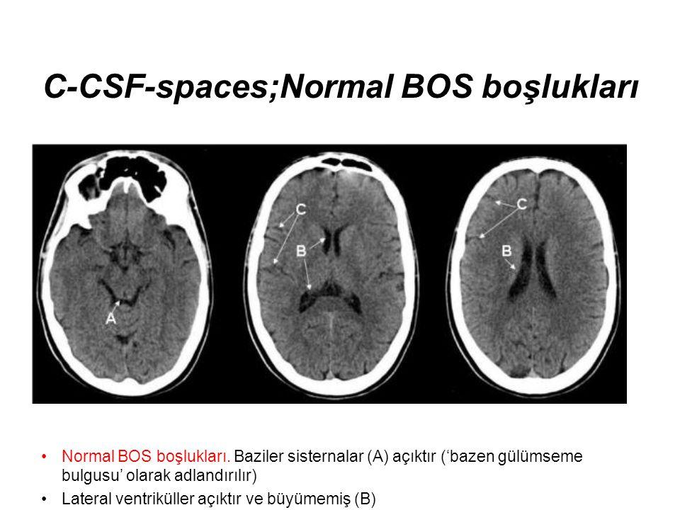 C-CSF-spaces;Normal BOS boşlukları •Normal BOS boşlukları. Baziler sisternalar (A) açıktır ('bazen gülümseme bulgusu' olarak adlandırılır) •Lateral ve