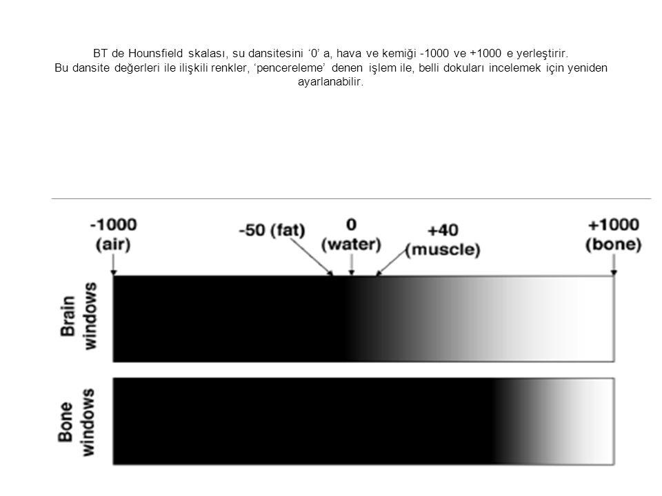 BT de Hounsfield skalası, su dansitesini '0' a, hava ve kemiği -1000 ve +1000 e yerleştirir. Bu dansite değerleri ile ilişkili renkler, 'pencereleme'