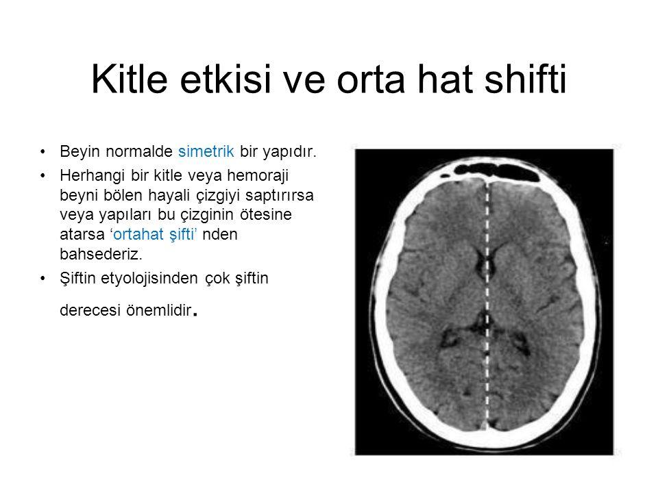 Subdural hematom •Subdural hematom (oklar), bir çok özelliği göstermektedir: •Hilal şekilli •Sutur hatlarını geçer (A) •Kitle etkisi ve şift (B) •Küçük ventriküllerle (C) beraber artmış KİB •Sulkusların görülmemesi (D)