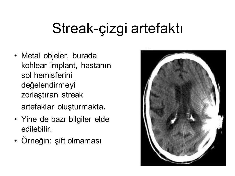 Streak-çizgi artefaktı •Metal objeler, burada kohlear implant, hastanın sol hemisferini değelendirmeyi zorlaştıran streak artefaklar oluşturmakta. •Yi