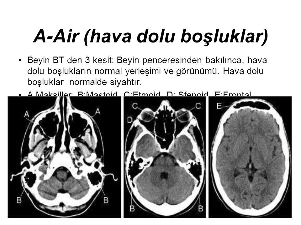 A-Air (hava dolu boşluklar) •Beyin BT den 3 kesit: Beyin penceresinden bakılınca, hava dolu boşlukların normal yerleşimi ve görünümü. Hava dolu boşluk