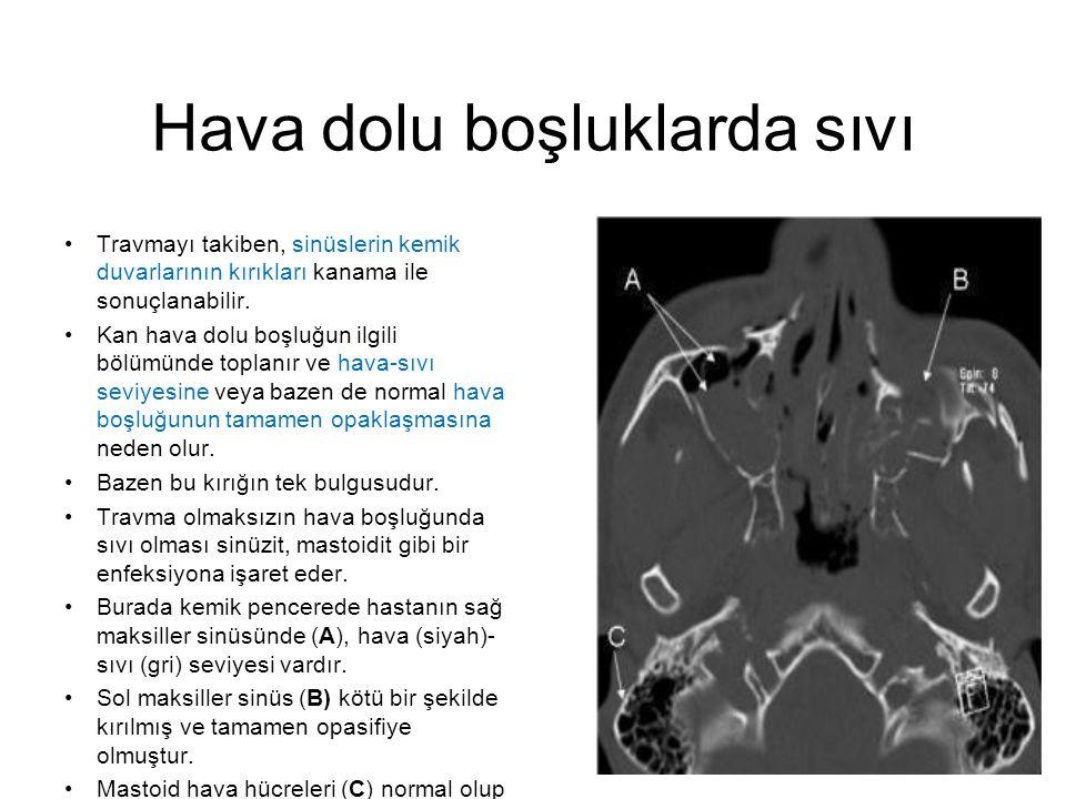 Serebral atrofi •Serebral atrofi: Baziler sisternalar açık (A oku), lateral ventriküller büyümüş (B), fakat sulkuslar eşit olarak belirgin (C).