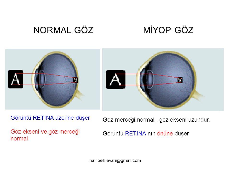 halilpehlevan@gmail.com NORMAL GÖZ MİYOP GÖZ Görüntü RETİNA üzerine düşer Göz ekseni ve göz merceği normal Göz merceği normal, göz ekseni uzundur.