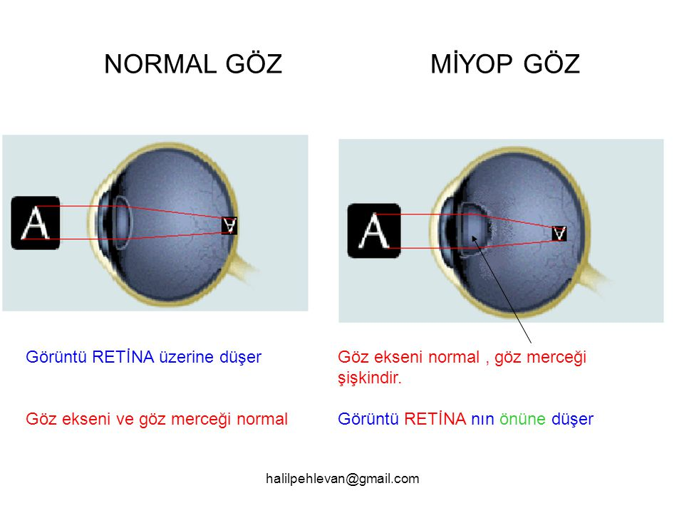 halilpehlevan@gmail.com NORMAL GÖZ MİYOP GÖZ Görüntü RETİNA üzerine düşer Göz ekseni ve göz merceği normal Göz ekseni normal, göz merceği şişkindir.