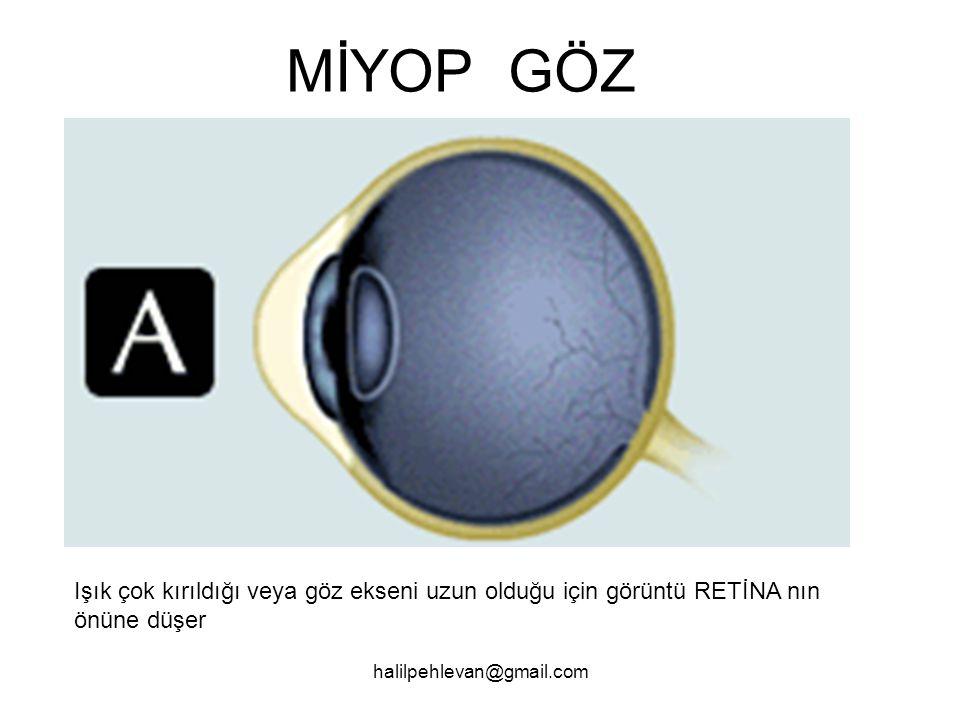 halilpehlevan@gmail.com MİYOP GÖZ Işık çok kırıldığı veya göz ekseni uzun olduğu için görüntü RETİNA nın önüne düşer